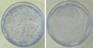 Es besteht laut einer neuen Studie eine Beziehung zwischen dem Langlebigkeitsprotein und dem Krebs